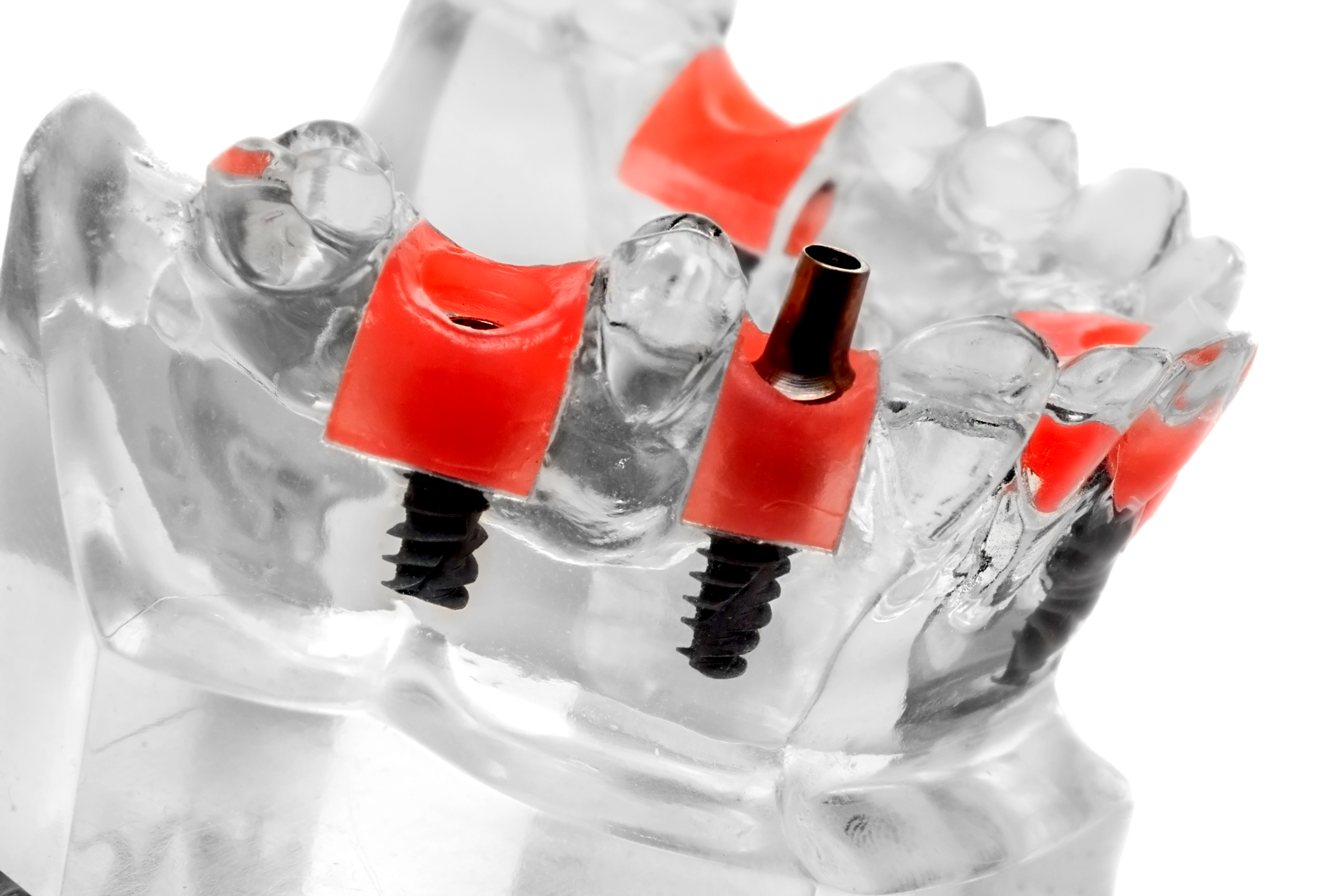 Dental Implant in One Day