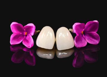 implantakademi-implant-dentalclinicsturkey-dentist-prothesis-aestheticdental